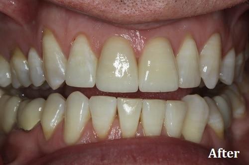 after bonding veneers - Danville, CA - Blackhawk Dental Care
