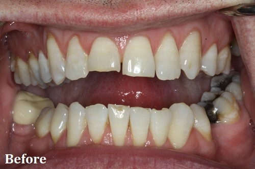 before bonding veneers - Danville, CA - Blackhawk Dental Care