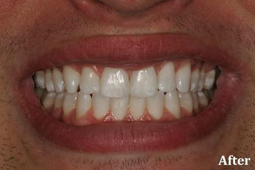 after bonding treatment - Danville, CA - Blackhawk Dental Care