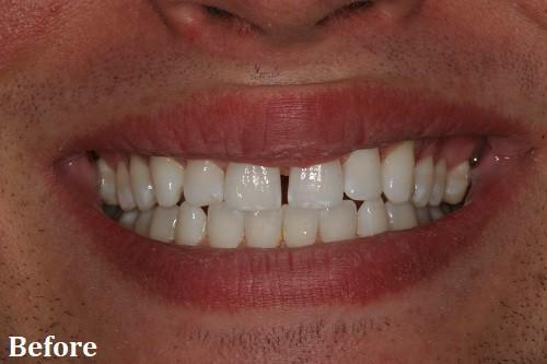 before treatment - Danville, CA - Blackhawk Dental Care