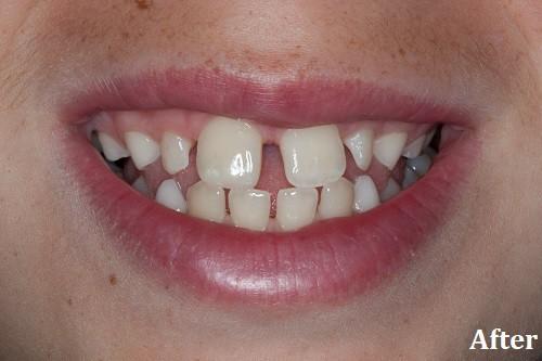 after bonding - Danville, CA - Blackhawk Dental Care