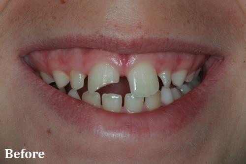before bonding - Danville, CA - Blackhawk Dental Care