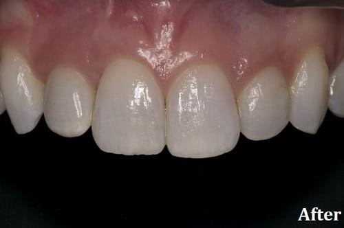 after implant - Danville, CA - Blackhawk Dental Care