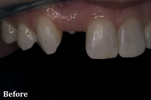 before implant - Danville, CA - Blackhawk Dental Care