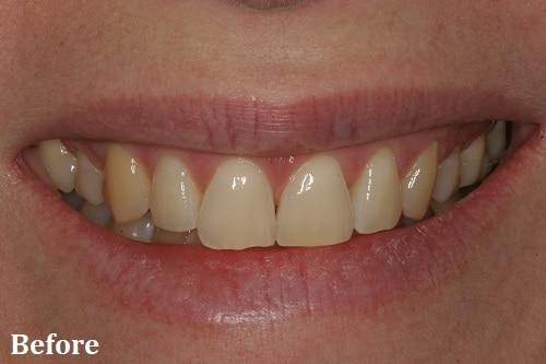 before whitening - Danville, CA - Blackhawk Dental Care