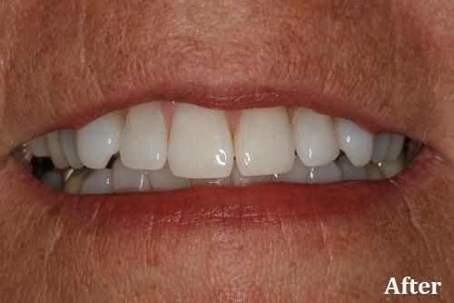 after whitening - Danville, CA - Blackhawk Dental Care
