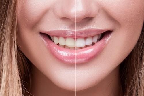 split screen of whitened teeth